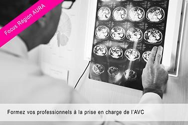 Formez vos professionnels à la prise en charge de l'AVC